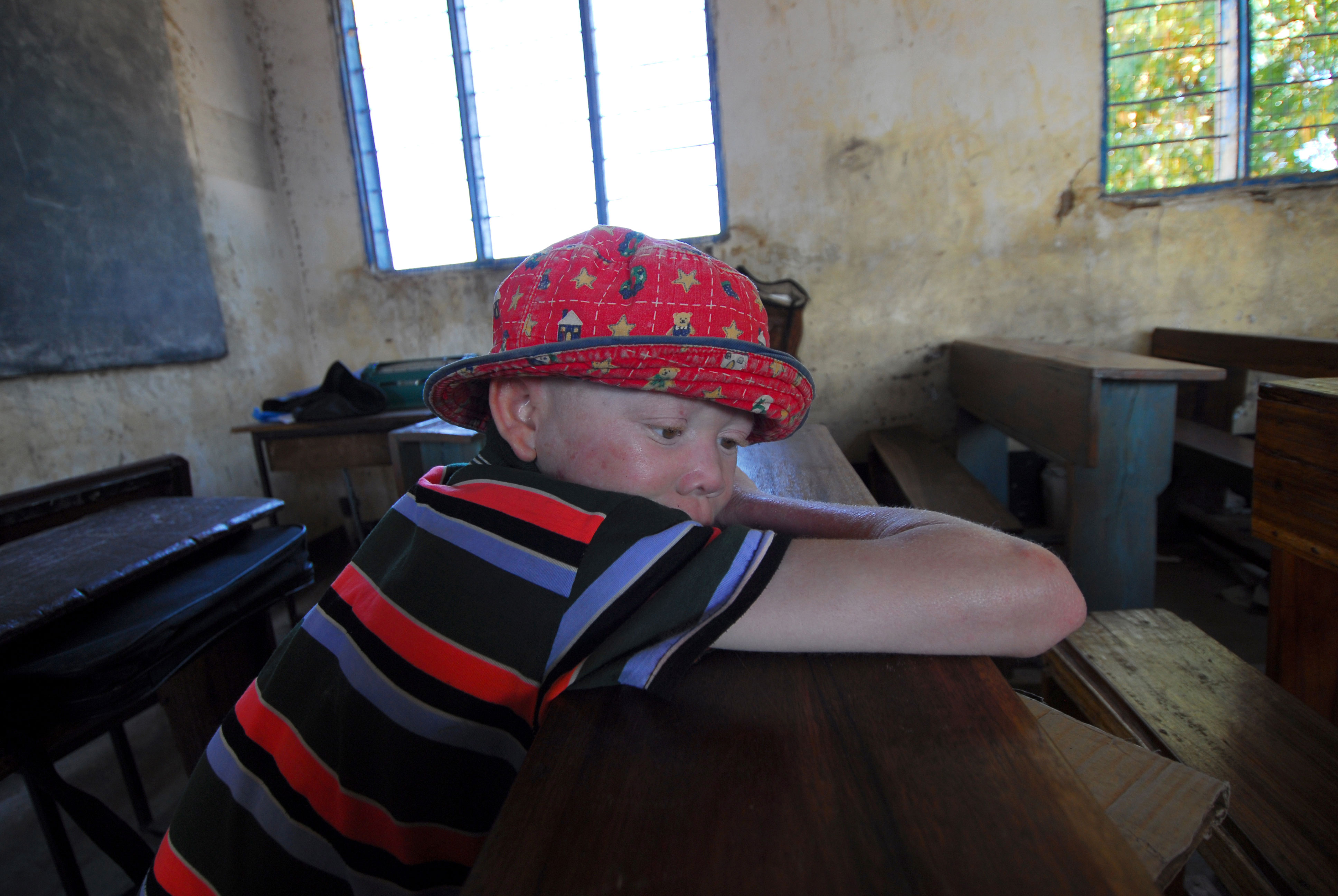 albino-rescue_Humanity-Healing_bigstock-african-albino-153771111