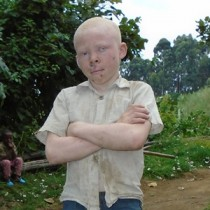 The Plight of Albinos