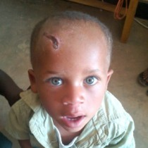 Albino Child Rescued After Attempted Beheading